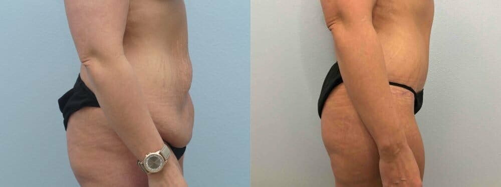 Tummy Tuck Gallery - Patient 49149777 - Image 6