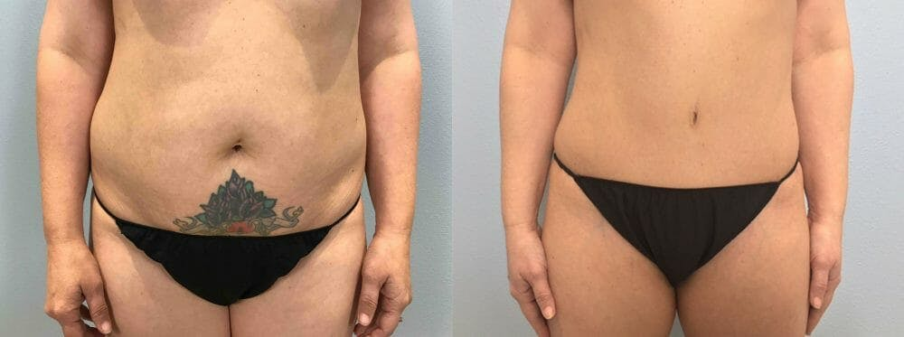 Tummy Tuck Gallery - Patient 49149779 - Image 1