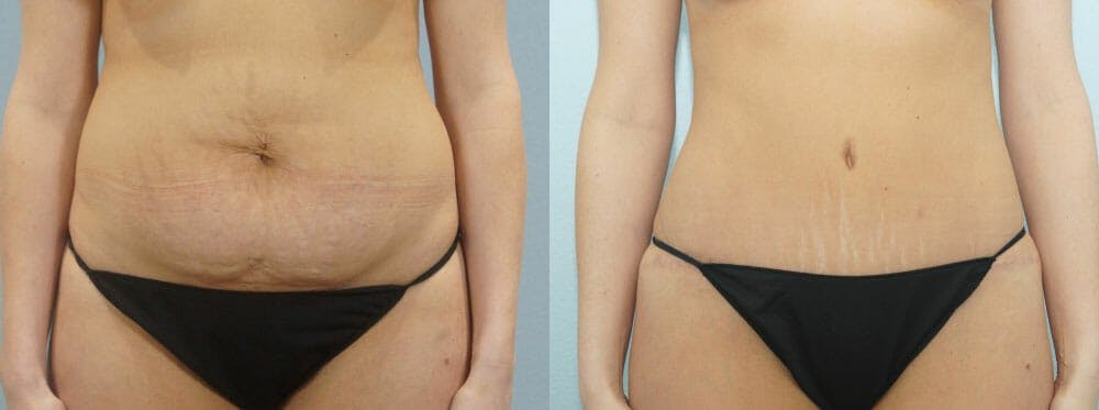 Tummy Tuck Gallery - Patient 49149784 - Image 1