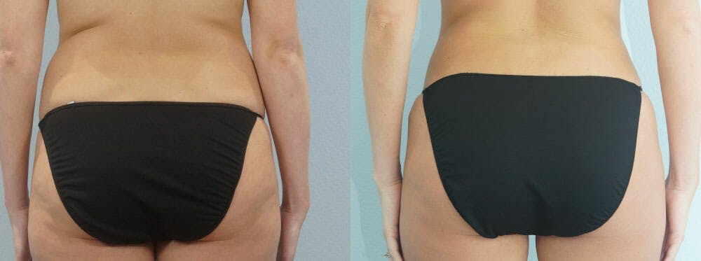 Tummy Tuck Gallery - Patient 49149784 - Image 2