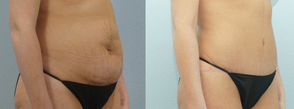 Tummy Tuck Gallery - Patient 49149784 - Image 3