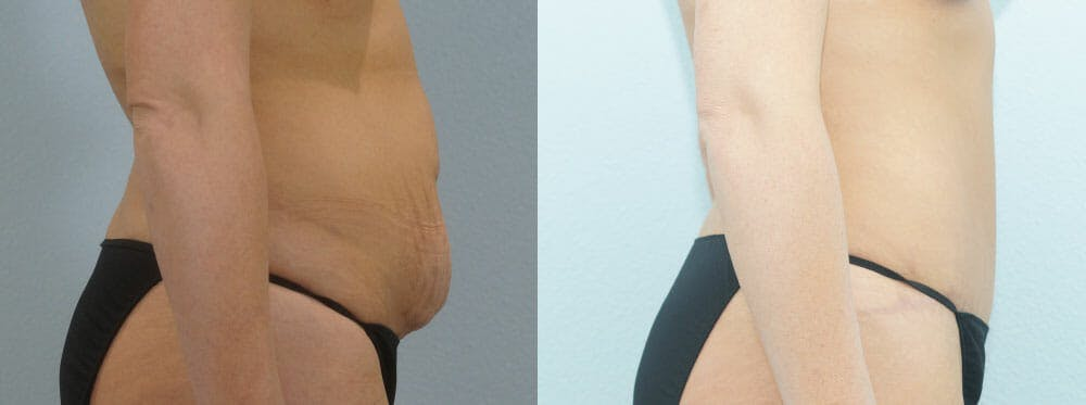 Tummy Tuck Gallery - Patient 49149784 - Image 4