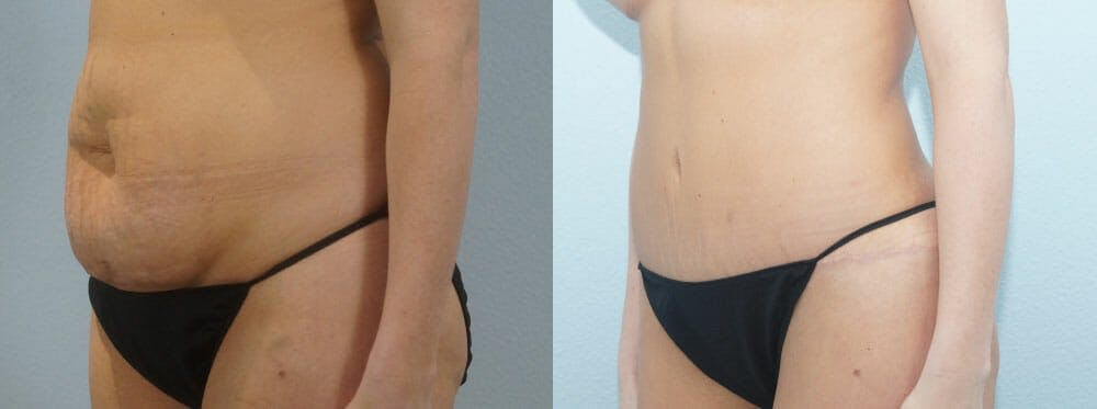 Tummy Tuck Gallery - Patient 49149784 - Image 5