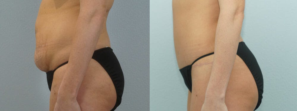 Tummy Tuck Gallery - Patient 49149784 - Image 6