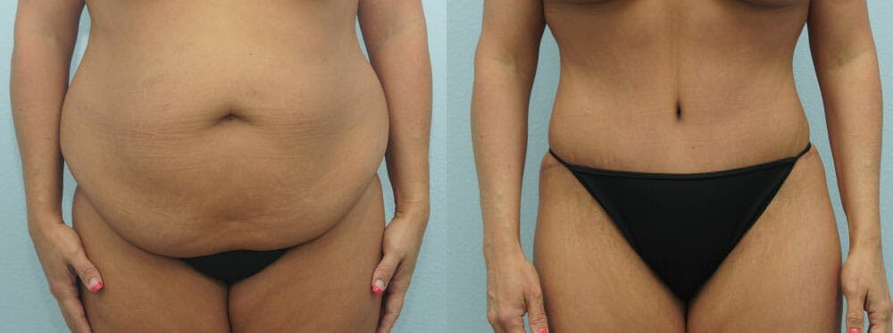 Tummy Tuck Gallery - Patient 49149787 - Image 1