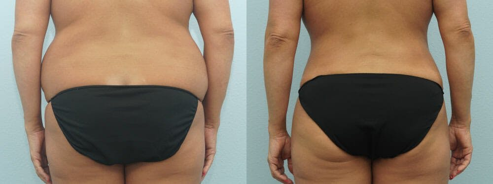 Tummy Tuck Gallery - Patient 49149787 - Image 2