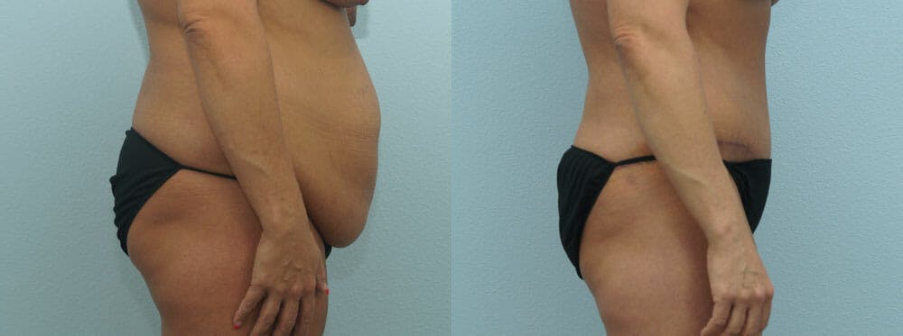 Tummy Tuck Gallery - Patient 49149787 - Image 3