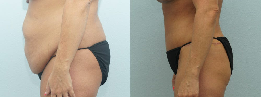 Tummy Tuck Gallery - Patient 49149787 - Image 4