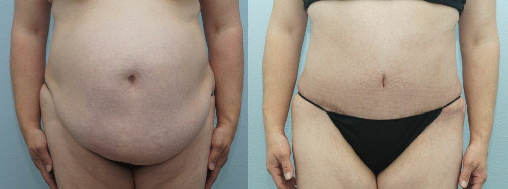 Tummy Tuck Gallery - Patient 49149790 - Image 1