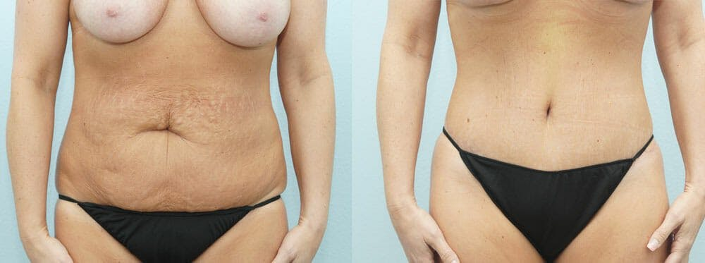 Tummy Tuck Gallery - Patient 49149792 - Image 1