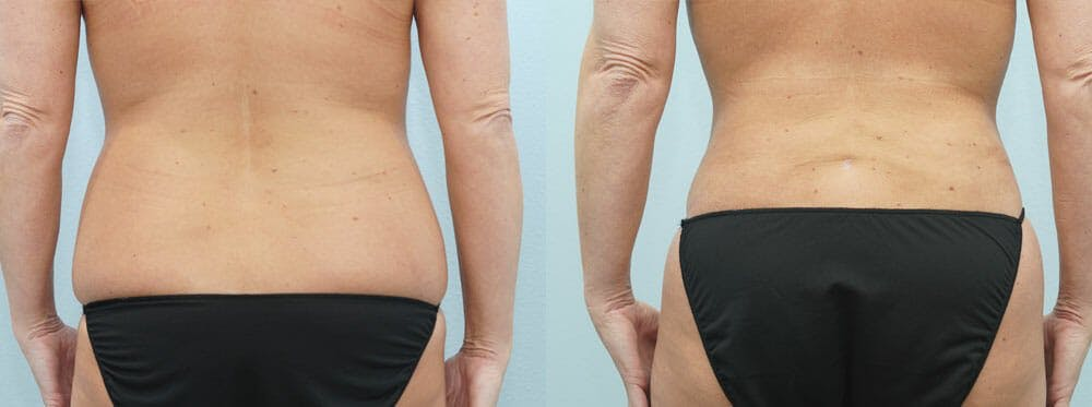 Tummy Tuck Gallery - Patient 49149792 - Image 2
