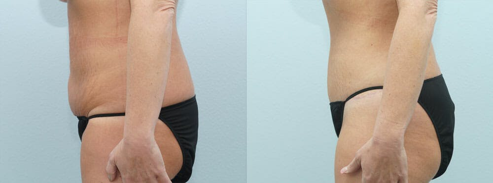 Tummy Tuck Gallery - Patient 49149792 - Image 3
