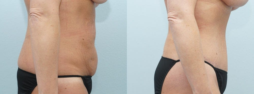 Tummy Tuck Gallery - Patient 49149792 - Image 4