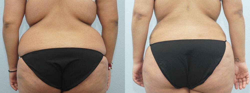 Tummy Tuck Gallery - Patient 49149797 - Image 2