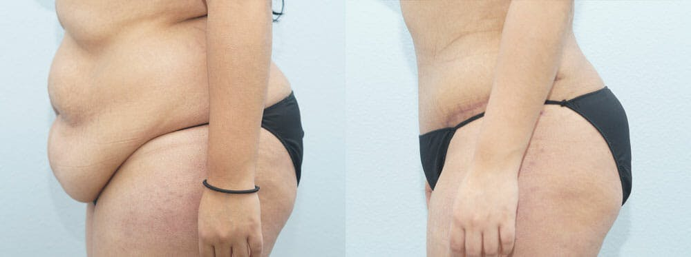 Tummy Tuck Gallery - Patient 49149797 - Image 4