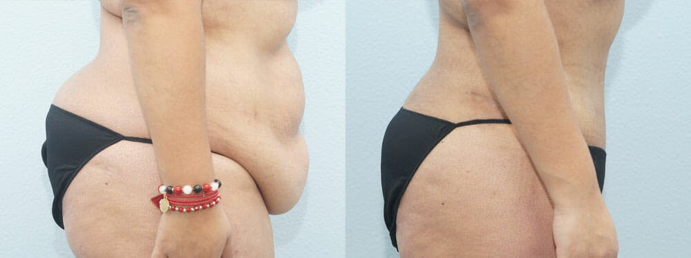 Tummy Tuck Gallery - Patient 49149797 - Image 5