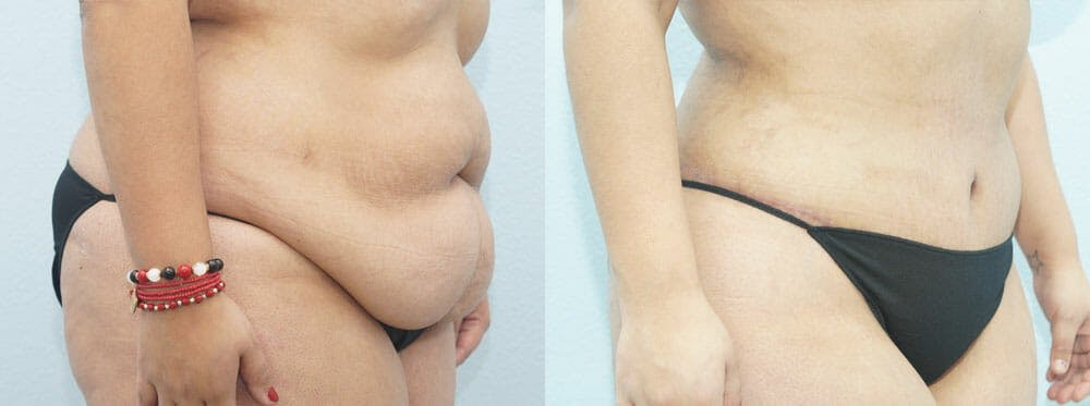 Tummy Tuck Gallery - Patient 49149797 - Image 6