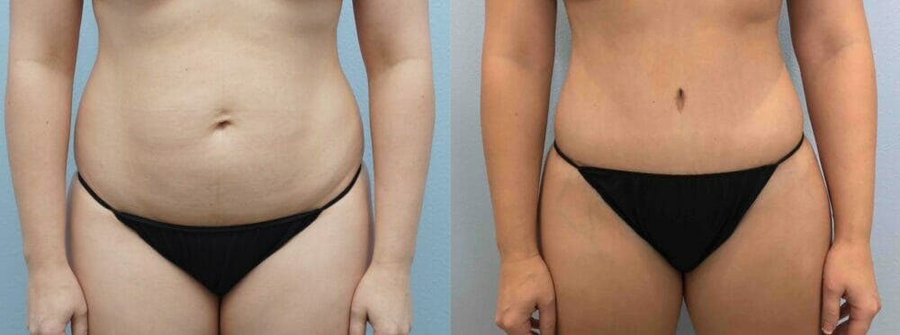 Tummy Tuck Gallery - Patient 49149798 - Image 1