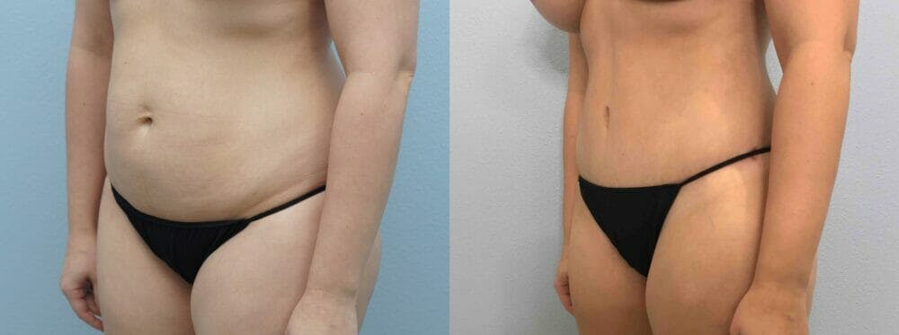Tummy Tuck Gallery - Patient 49149798 - Image 2