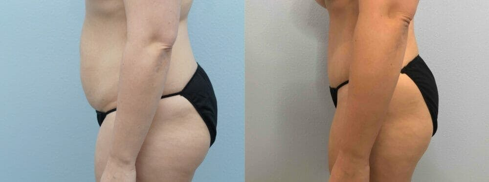 Tummy Tuck Gallery - Patient 49149798 - Image 3