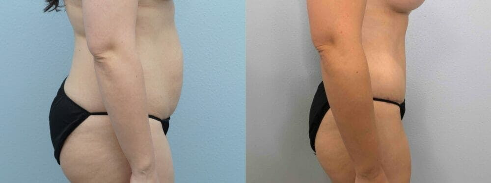 Tummy Tuck Gallery - Patient 49149798 - Image 5