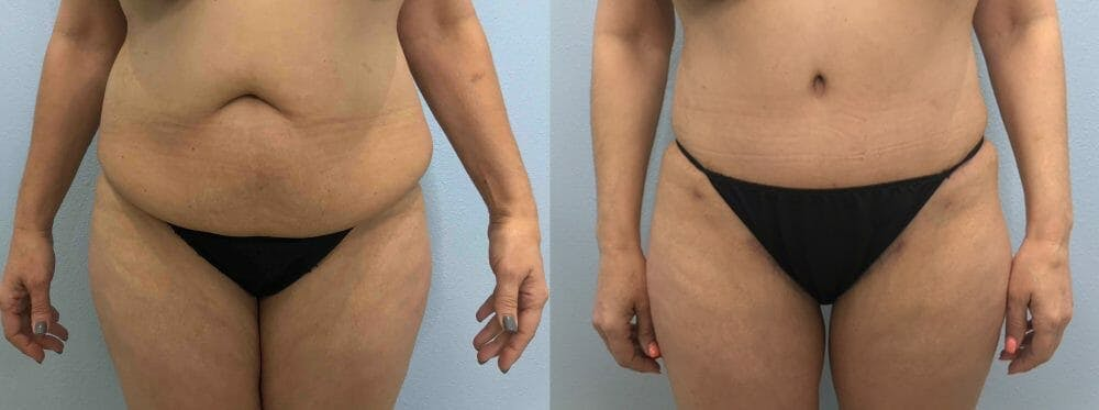Tummy Tuck Gallery - Patient 49149804 - Image 1