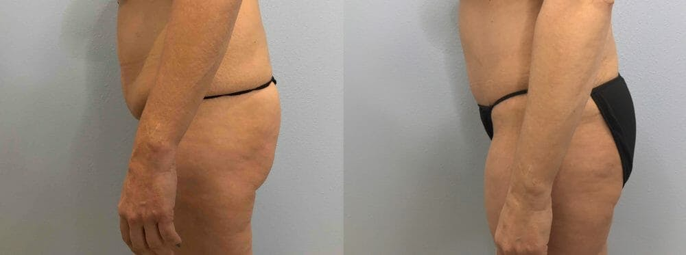 Tummy Tuck Gallery - Patient 49149804 - Image 3