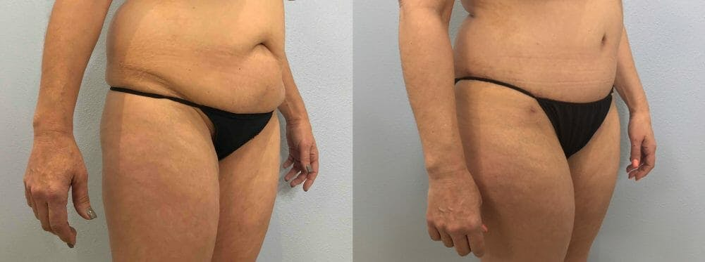 Tummy Tuck Gallery - Patient 49149804 - Image 4