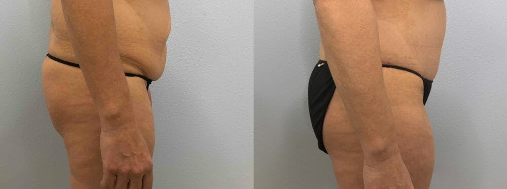 Tummy Tuck Gallery - Patient 49149804 - Image 5