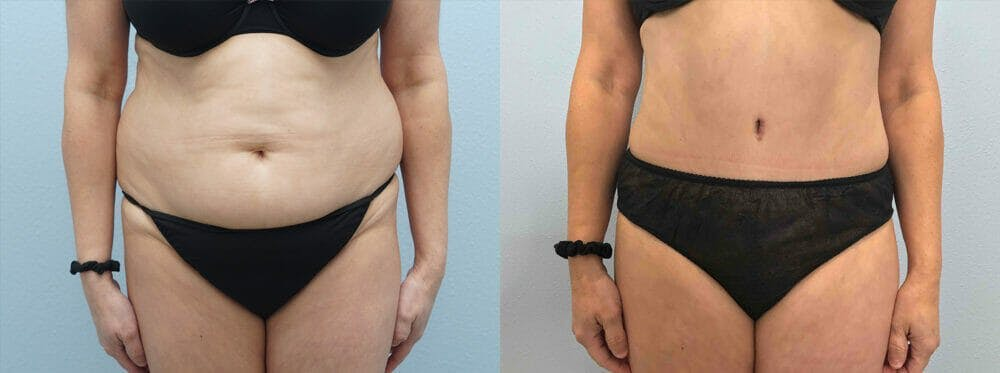 Tummy Tuck Gallery - Patient 49149808 - Image 1