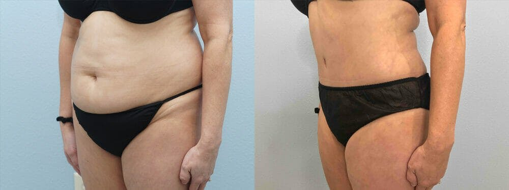 Tummy Tuck Gallery - Patient 49149808 - Image 2