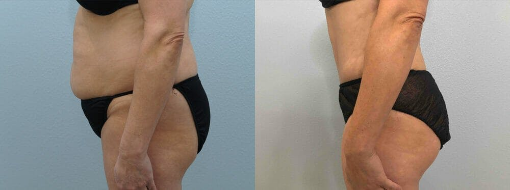 Tummy Tuck Gallery - Patient 49149808 - Image 3