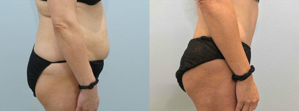 Tummy Tuck Gallery - Patient 49149808 - Image 5