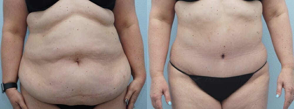 Tummy Tuck Gallery - Patient 49149862 - Image 1