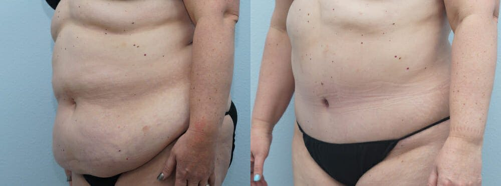 Tummy Tuck Gallery - Patient 49149862 - Image 2