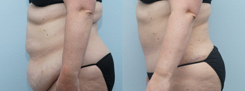 Tummy Tuck Gallery - Patient 49149862 - Image 3