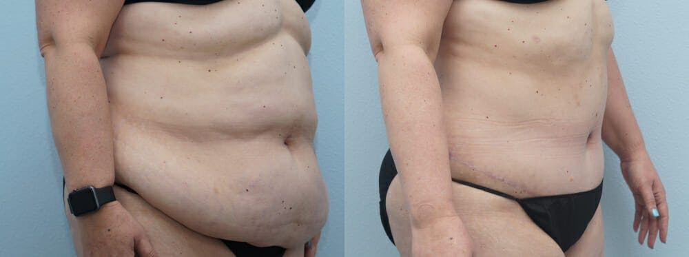 Tummy Tuck Gallery - Patient 49149862 - Image 4