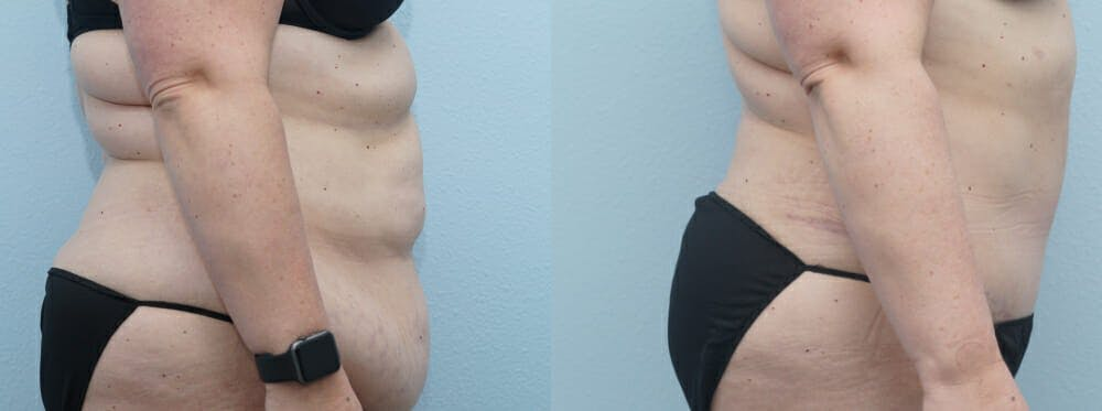 Tummy Tuck Gallery - Patient 49149862 - Image 5