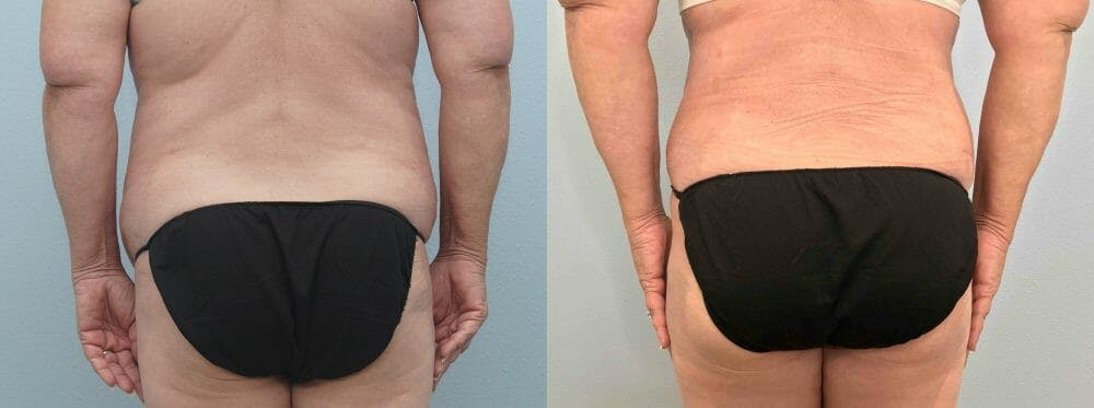 Tummy Tuck Gallery - Patient 49149863 - Image 2