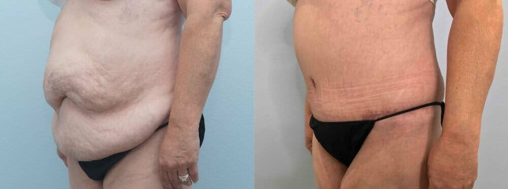 Tummy Tuck Gallery - Patient 49149863 - Image 3