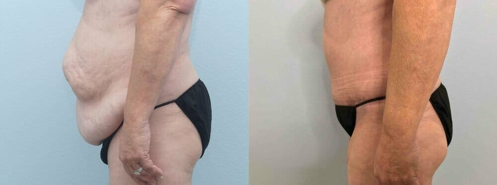 Tummy Tuck Gallery - Patient 49149863 - Image 4