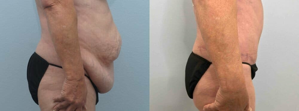 Tummy Tuck Gallery - Patient 49149863 - Image 6