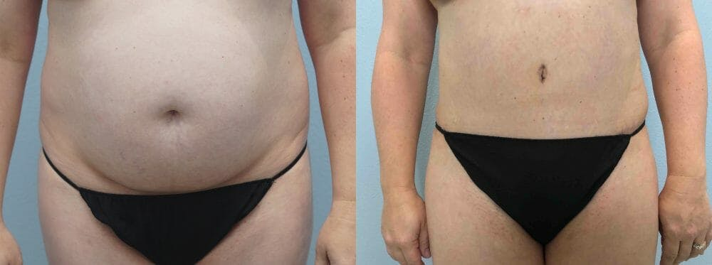 Tummy Tuck Gallery - Patient 49149871 - Image 1