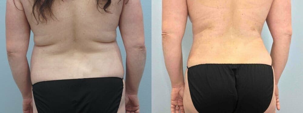 Tummy Tuck Gallery - Patient 49149871 - Image 2