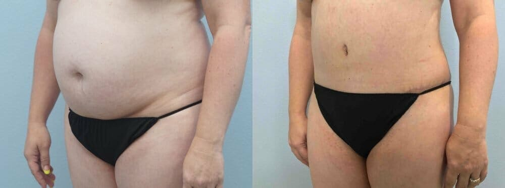Tummy Tuck Gallery - Patient 49149871 - Image 3