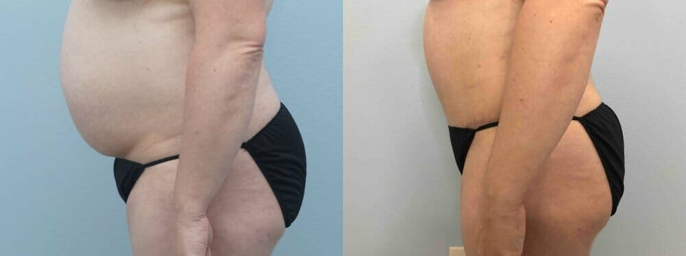 Tummy Tuck Gallery - Patient 49149871 - Image 4