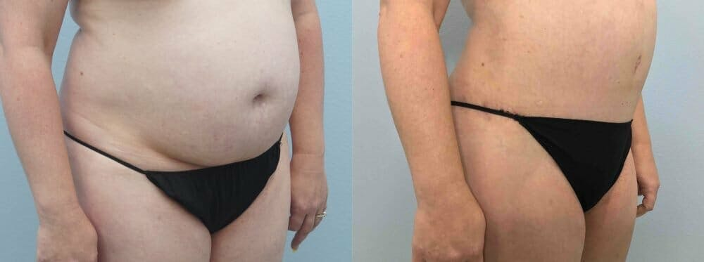 Tummy Tuck Gallery - Patient 49149871 - Image 5