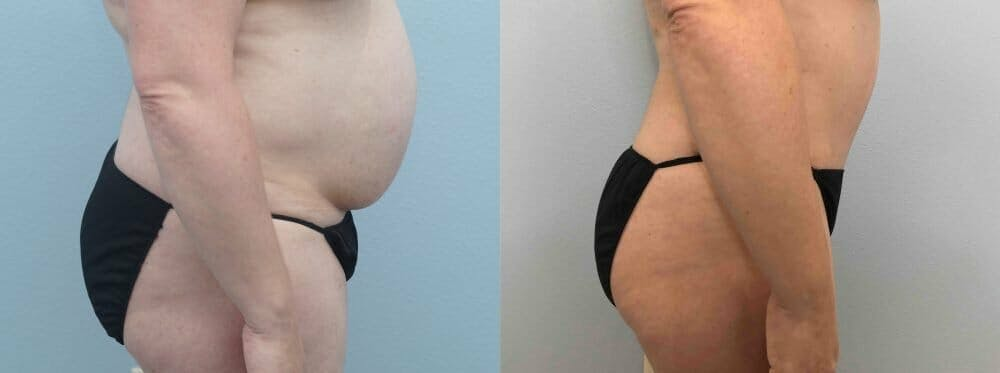 Tummy Tuck Gallery - Patient 49149871 - Image 6