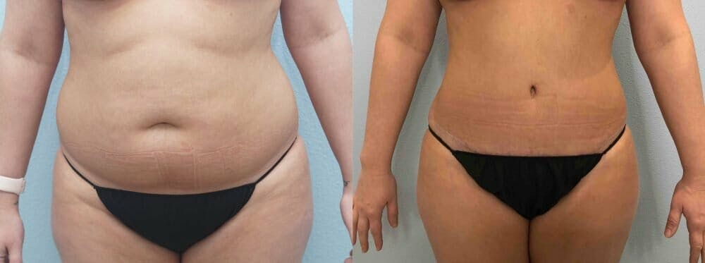 Tummy Tuck Gallery - Patient 49149874 - Image 1