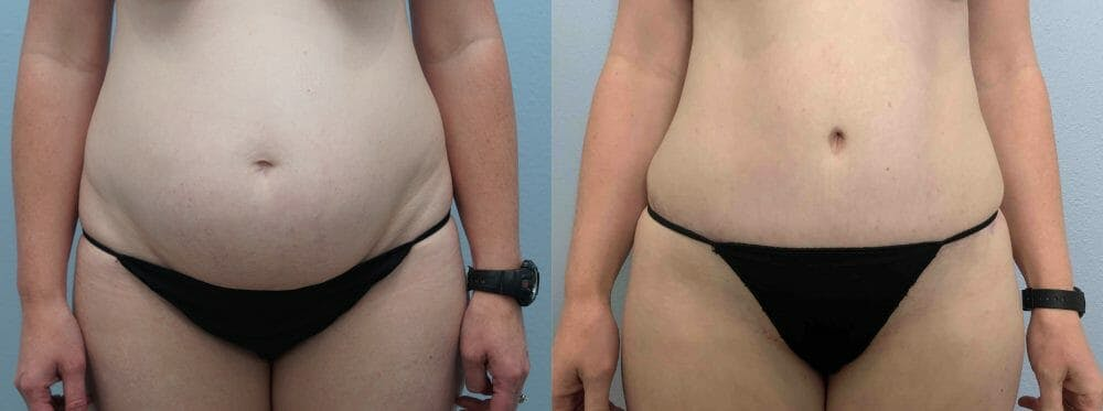Tummy Tuck Gallery - Patient 49149928 - Image 1